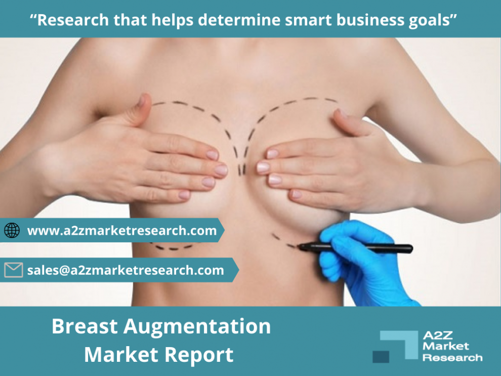 breast augmentation market to witness huge expansion by 2027 johnson johnson us allergan ireland ideal implant incorporated us sebbin france